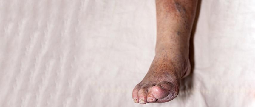 As varizes e a dermatite