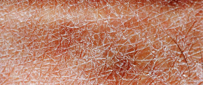 Ressecamento da pele como efeito colateral de medicamentos