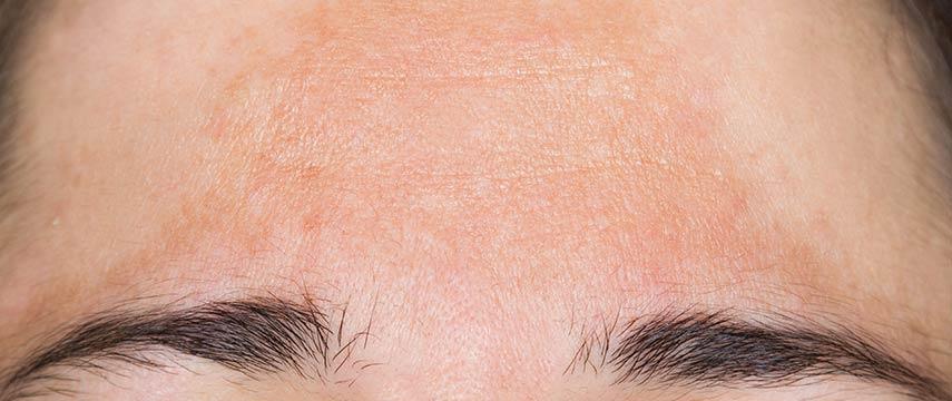 Manchas na pele?  Veja dicas e tratamentos contra o melasma