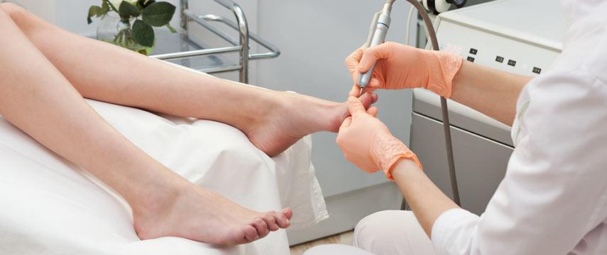 Ingrown Nail Surgery - Dra Natalia Cymrot