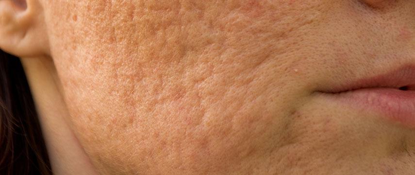Cicatrizes de Acne e Outras