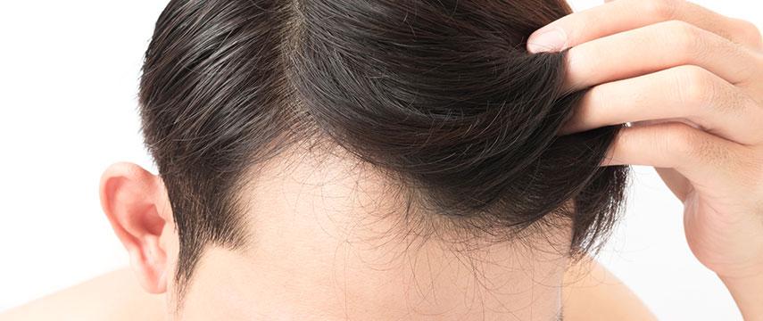 Hair Loss - MMP