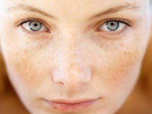 rosto de mulher frontal com manchas na pele