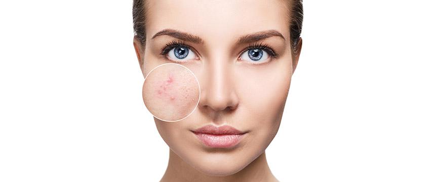 A acne nas mulheres