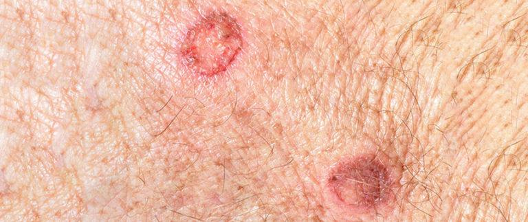 O que é a Queratose actínica da pele?
