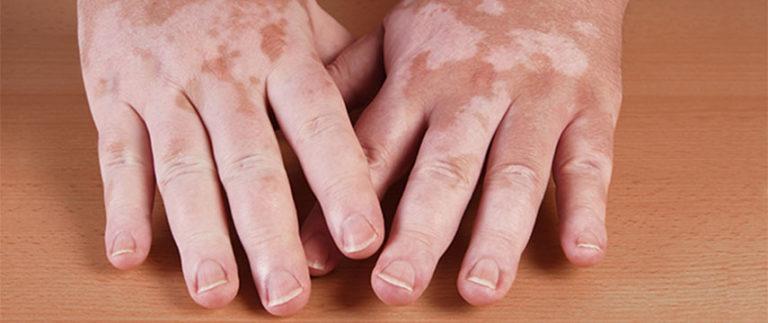 O Vitiligo tem cura?