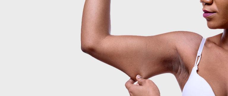 Flacidez da pele, como tratar e prevenir