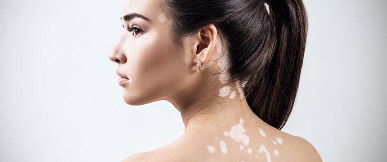 Vitiligo atinge 2% da população mundial. Você sabe do que se trata?